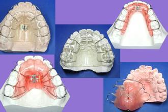 歯科材料 輸入
